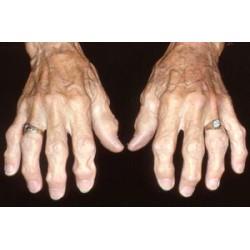 Остеопороза и остеоартроза